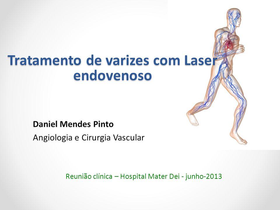 Tratamento de varizes com Laser endovenoso