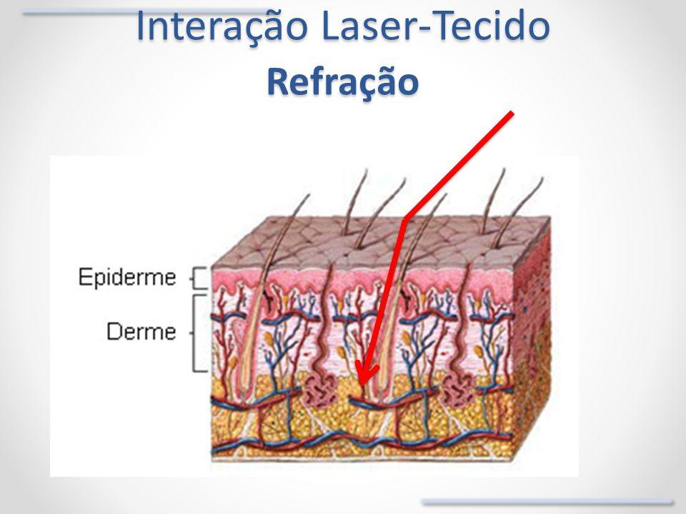 Interação Laser-Tecido Refração