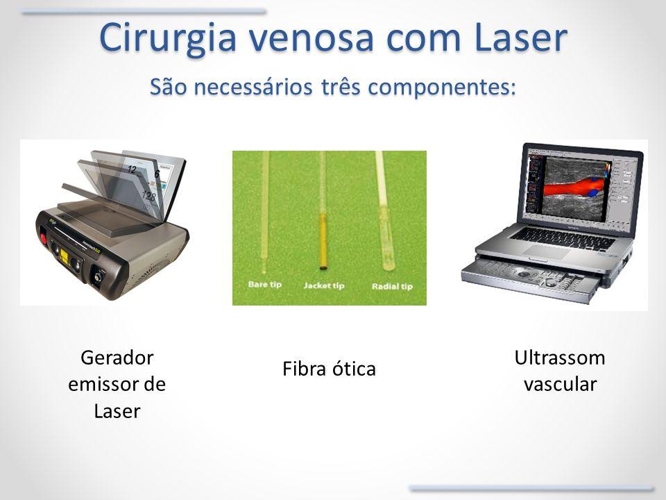 Cirurgia venosa com Laser São necessários três componentes: