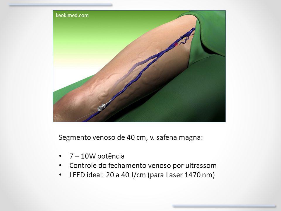 Segmento venoso de 40 cm, v. safena magna: 7 – 10W potência