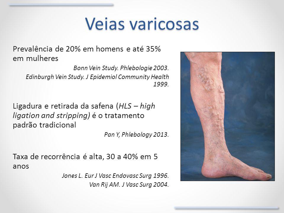 Veias varicosas Prevalência de 20% em homens e até 35% em mulheres