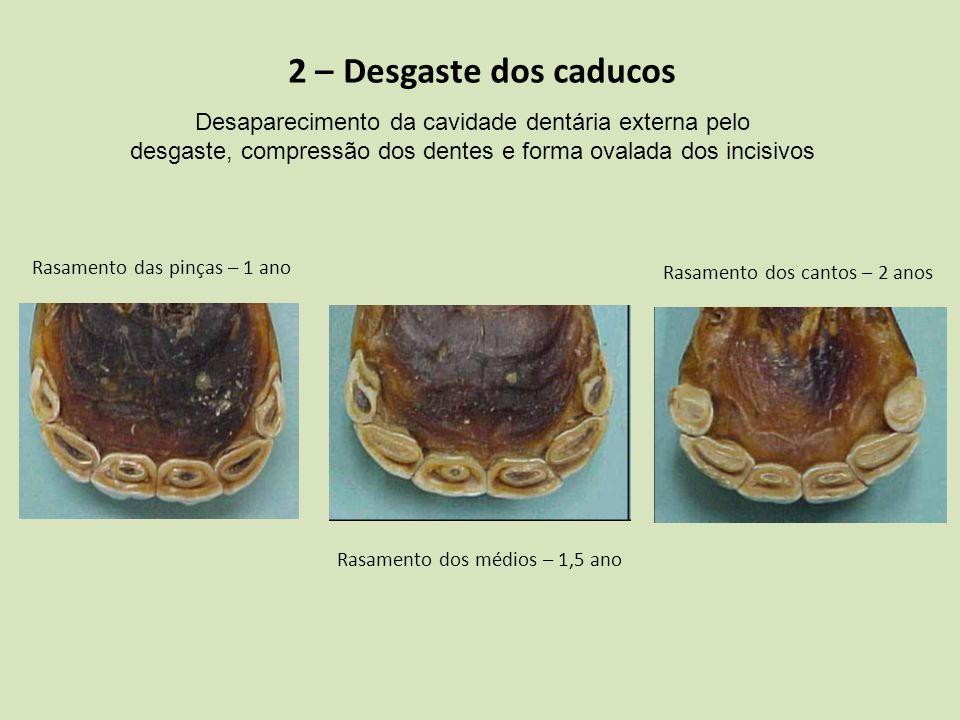 2 – Desgaste dos caducos Desaparecimento da cavidade dentária externa pelo. desgaste, compressão dos dentes e forma ovalada dos incisivos.