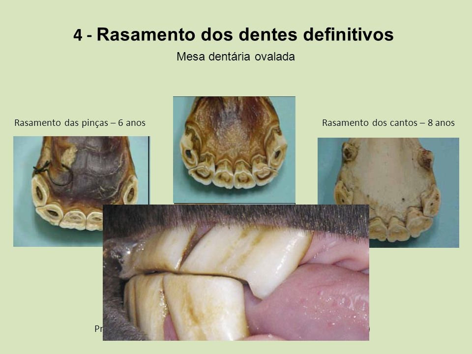 4 - Rasamento dos dentes definitivos