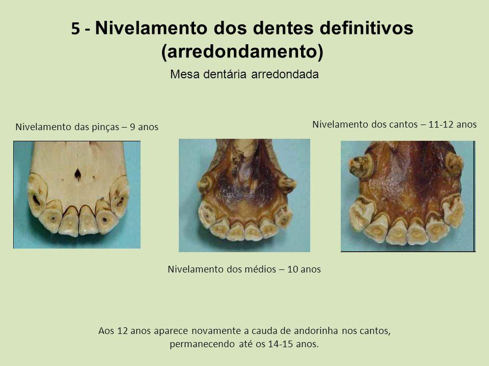 5 - Nivelamento dos dentes definitivos