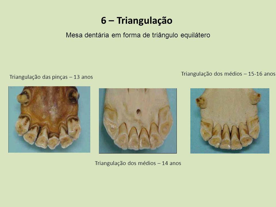 6 – Triangulação Mesa dentária em forma de triângulo equilátero
