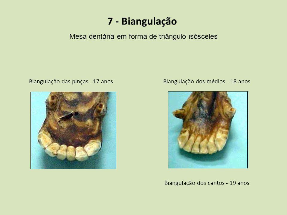 7 - Biangulação Mesa dentária em forma de triângulo isósceles