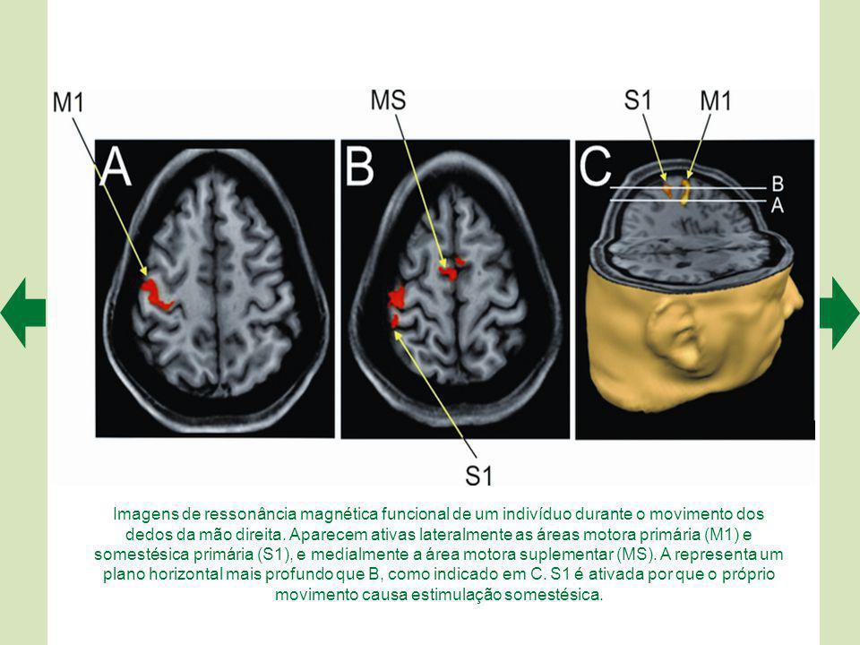 Imagens de ressonância magnética funcional de um indivíduo durante o movimento dos dedos da mão direita. Aparecem ativas lateralmente as áreas motora primária (M1) e somestésica primária (S1), e medialmente a área motora suplementar (MS). A representa um