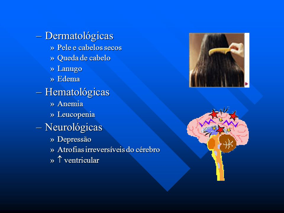 Dermatológicas Hematológicas Neurológicas Pele e cabelos secos