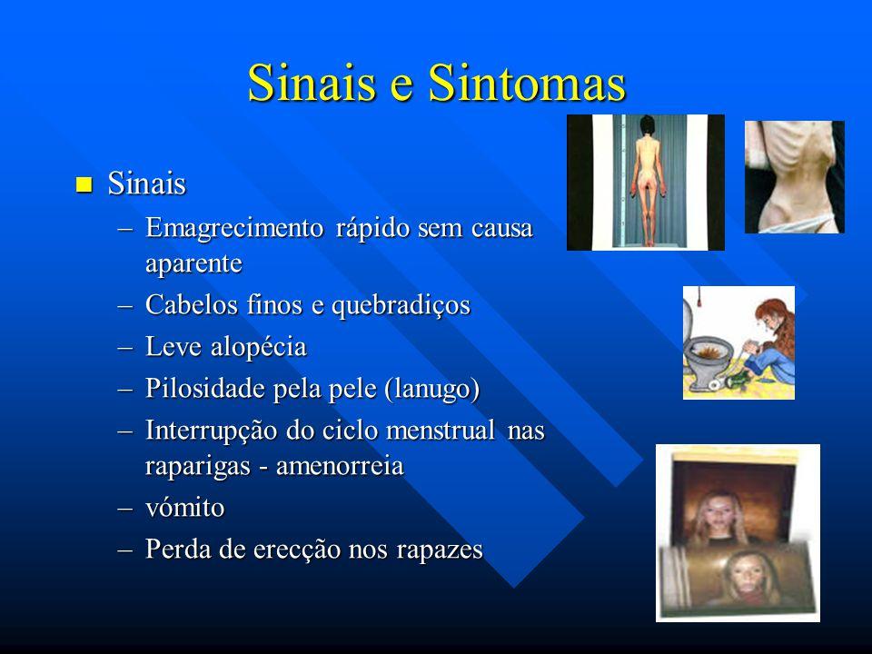 Sinais e Sintomas Sinais Emagrecimento rápido sem causa aparente