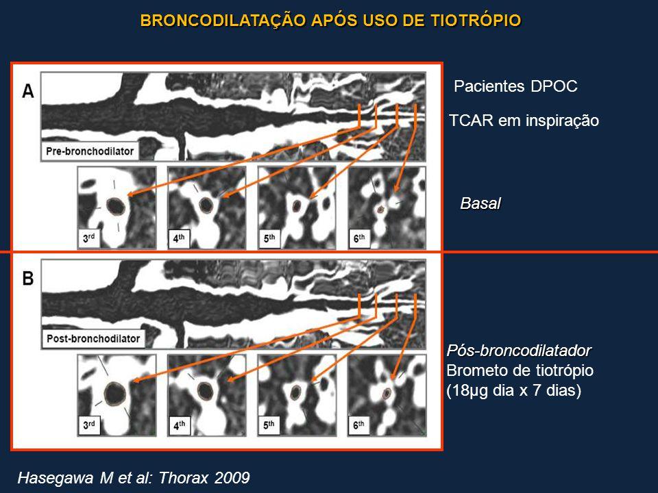 BRONCODILATAÇÃO APÓS USO DE TIOTRÓPIO