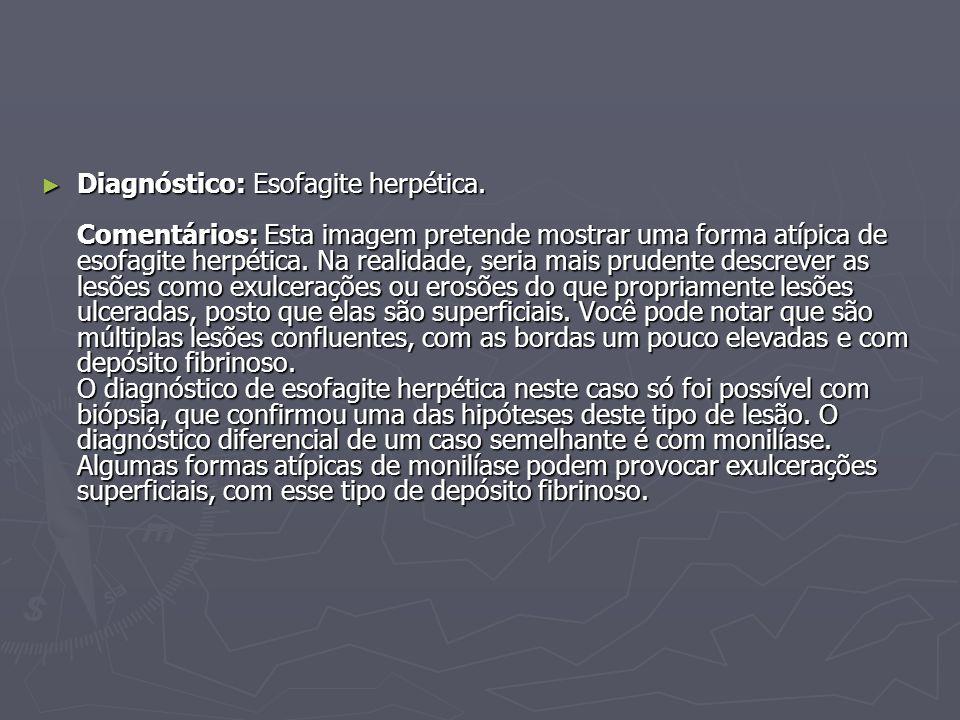 Diagnóstico: Esofagite herpética
