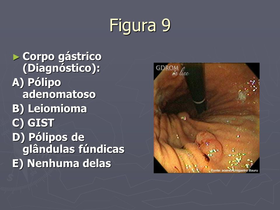 Figura 9 Corpo gástrico (Diagnóstico): A) Pólipo adenomatoso