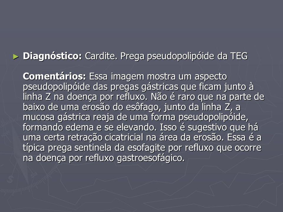 Diagnóstico: Cardite.