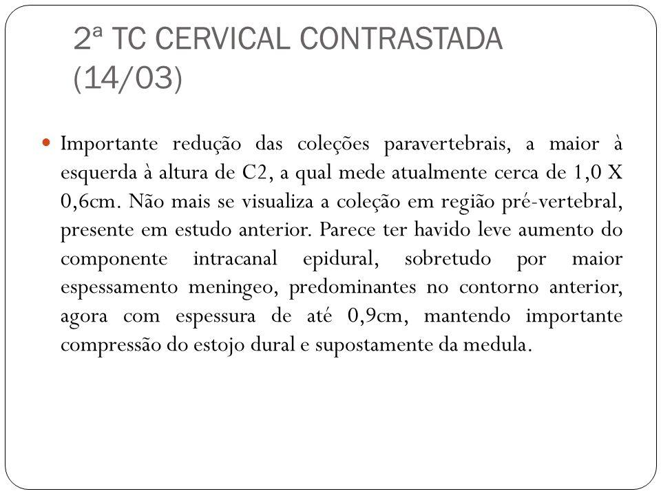 2ª TC CERVICAL CONTRASTADA (14/03)