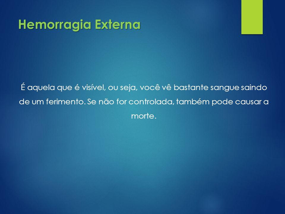 Hemorragia Externa