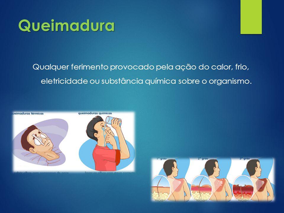 Queimadura Qualquer ferimento provocado pela ação do calor, frio, eletricidade ou substância química sobre o organismo.