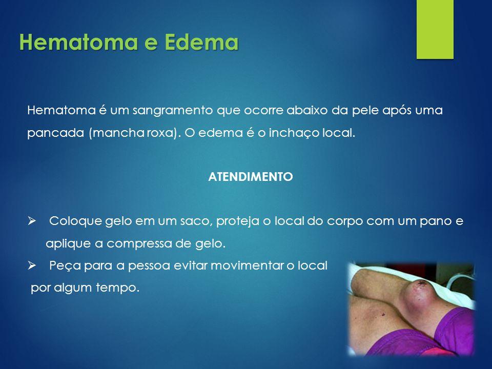 Hematoma e Edema Hematoma é um sangramento que ocorre abaixo da pele após uma pancada (mancha roxa). O edema é o inchaço local.