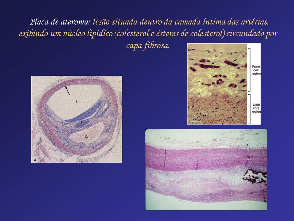 Placa de ateroma: lesão situada dentro da camada íntima das artérias, exibindo um núcleo lipídico (colesterol e ésteres de colesterol) circundado por capa fibrosa.