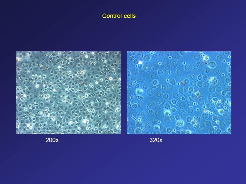 Control cells 200x 320x