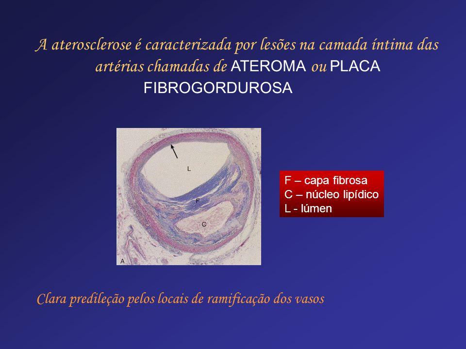 A aterosclerose é caracterizada por lesões na camada íntima das artérias chamadas de ATEROMA ou PLACA FIBROGORDUROSA
