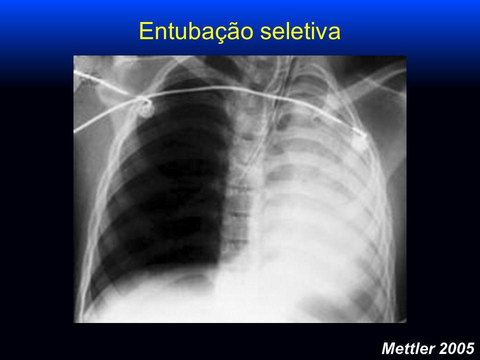 Entubação seletiva Mettler 2005