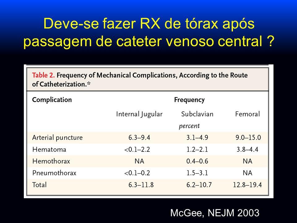 Deve-se fazer RX de tórax após passagem de cateter venoso central