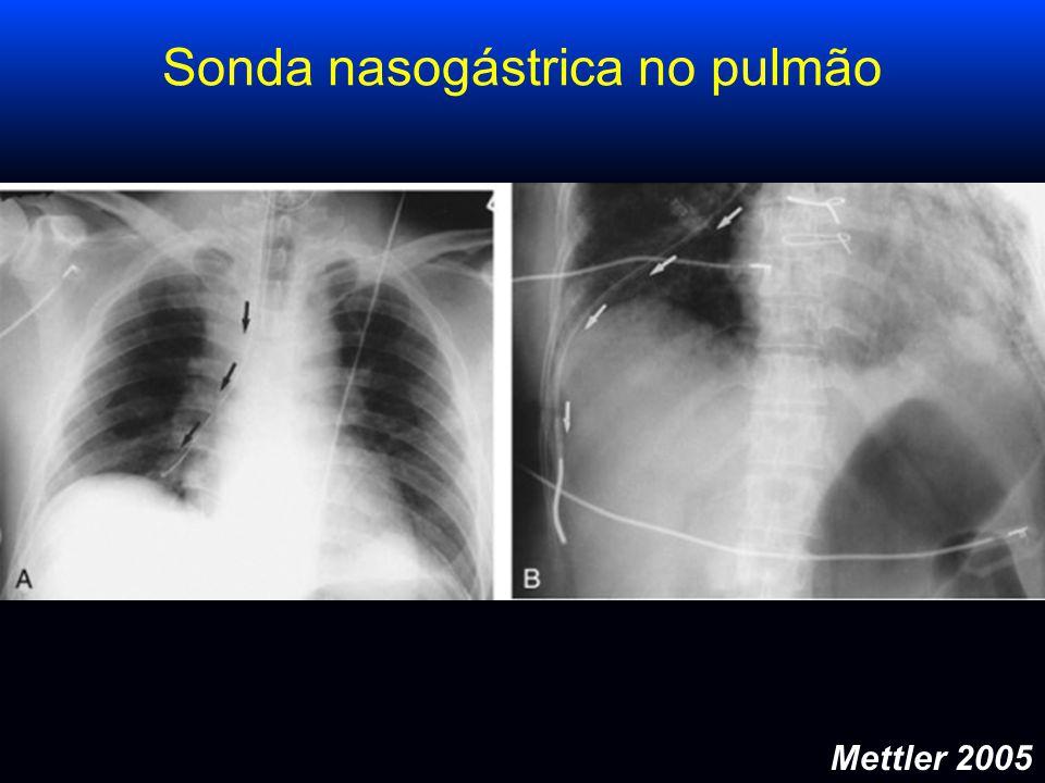 Sonda nasogástrica no pulmão