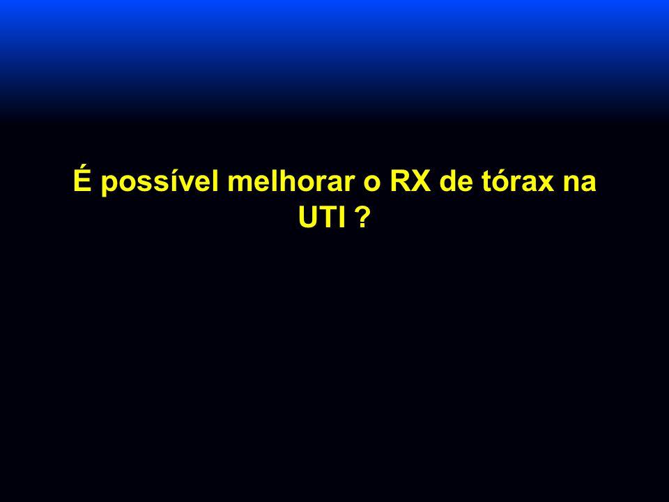 É possível melhorar o RX de tórax na UTI
