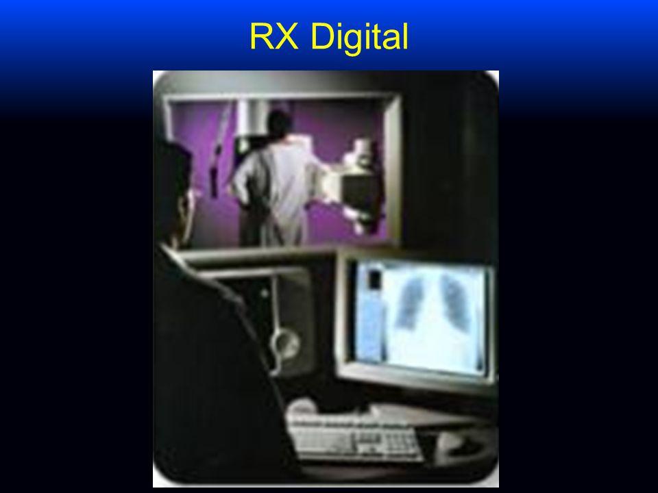 RX Digital