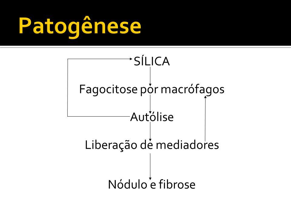 Patogênese SÍLICA Fagocitose por macrófagos Autólise Liberação de mediadores Nódulo e fibrose