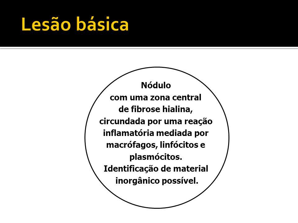 Lesão básica Nódulo com uma zona central de fibrose hialina,