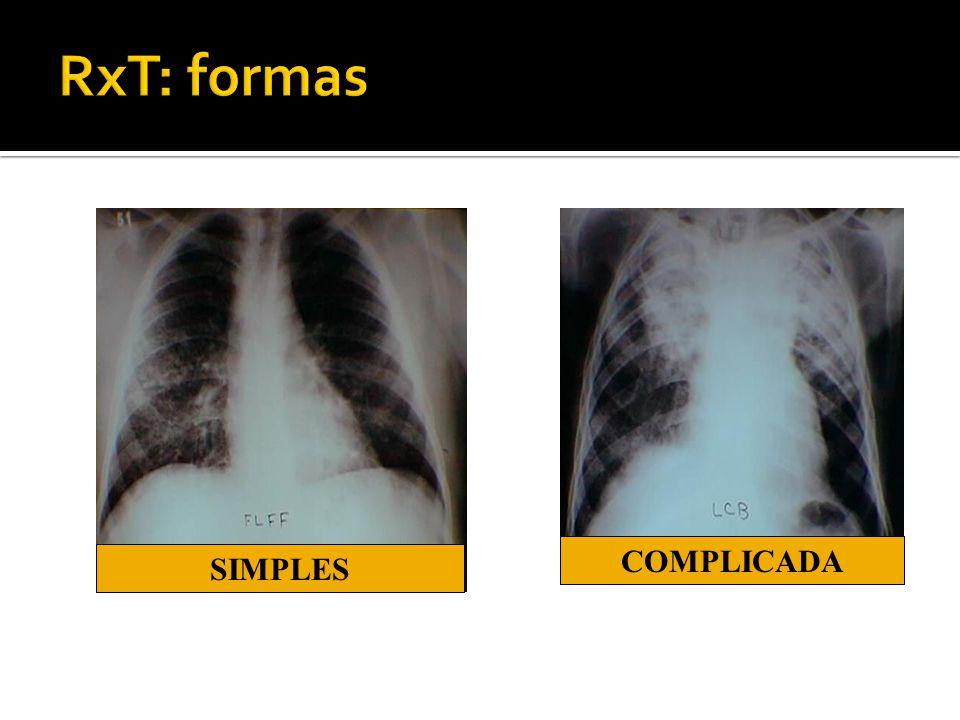 RxT: formas COMPLICADA SIMPLES 20