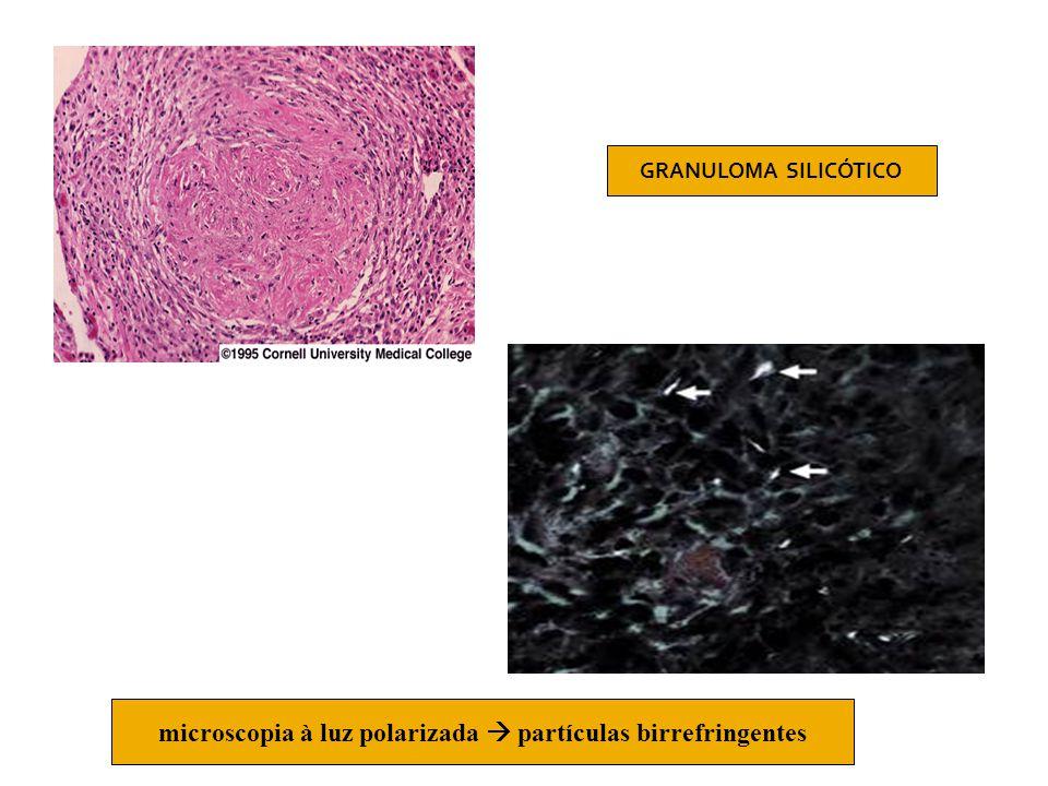 microscopia à luz polarizada  partículas birrefringentes