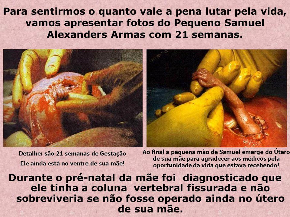 Para sentirmos o quanto vale a pena lutar pela vida, vamos apresentar fotos do Pequeno Samuel Alexanders Armas com 21 semanas.