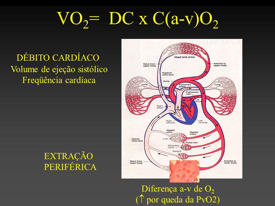 Volume de ejeção sistólico
