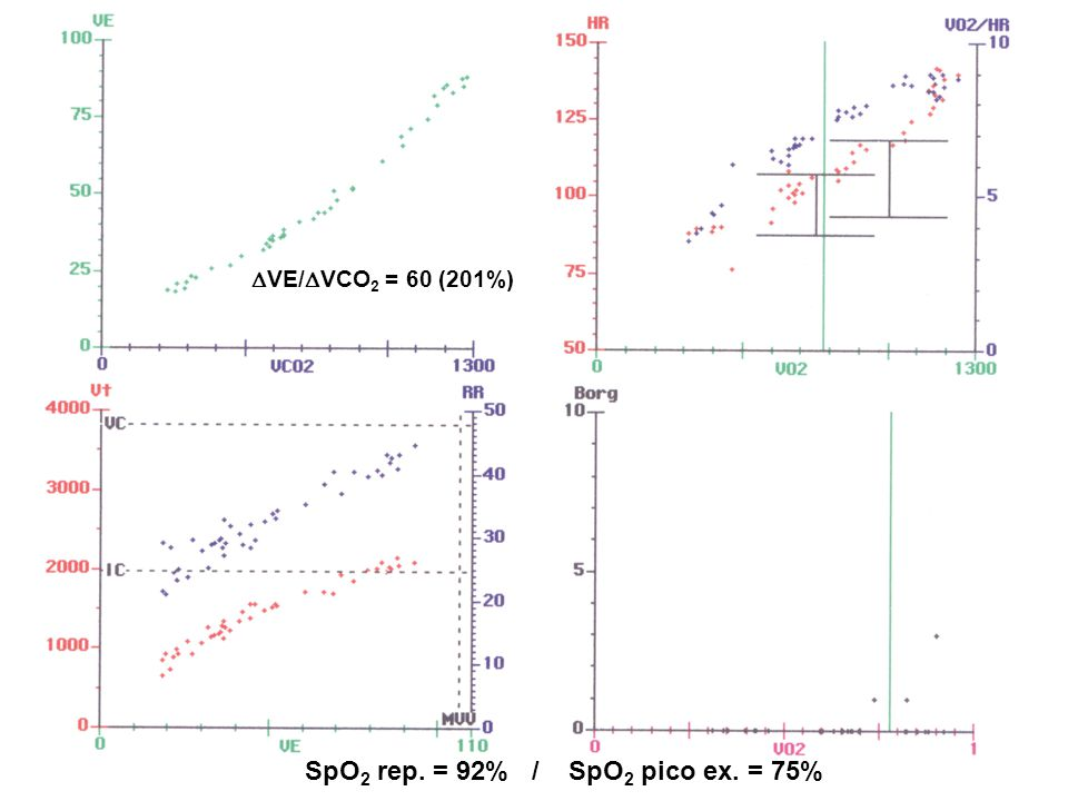 SpO2 rep. = 92% / SpO2 pico ex. = 75%