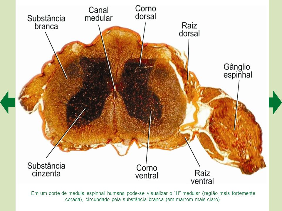 Em um corte de medula espinhal humana pode-se visualizar o H medular (região mais fortemente corada), circundado pela substância branca (em marrom mais claro).