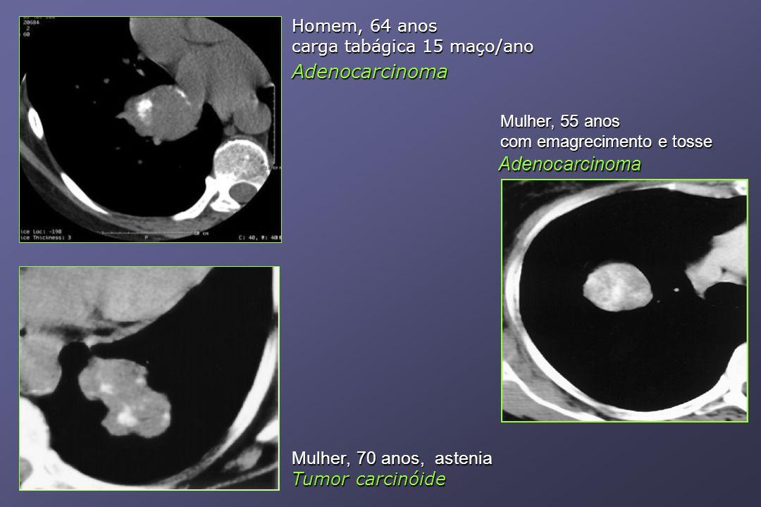 Adenocarcinoma Adenocarcinoma Mulher, 70 anos, astenia