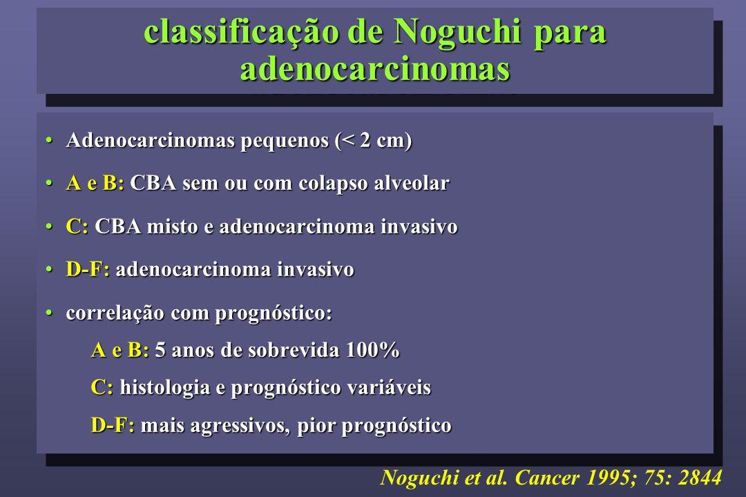 classificação de Noguchi para adenocarcinomas