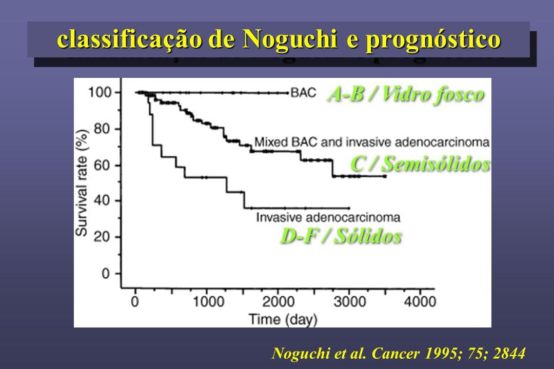 classificação de Noguchi e prognóstico