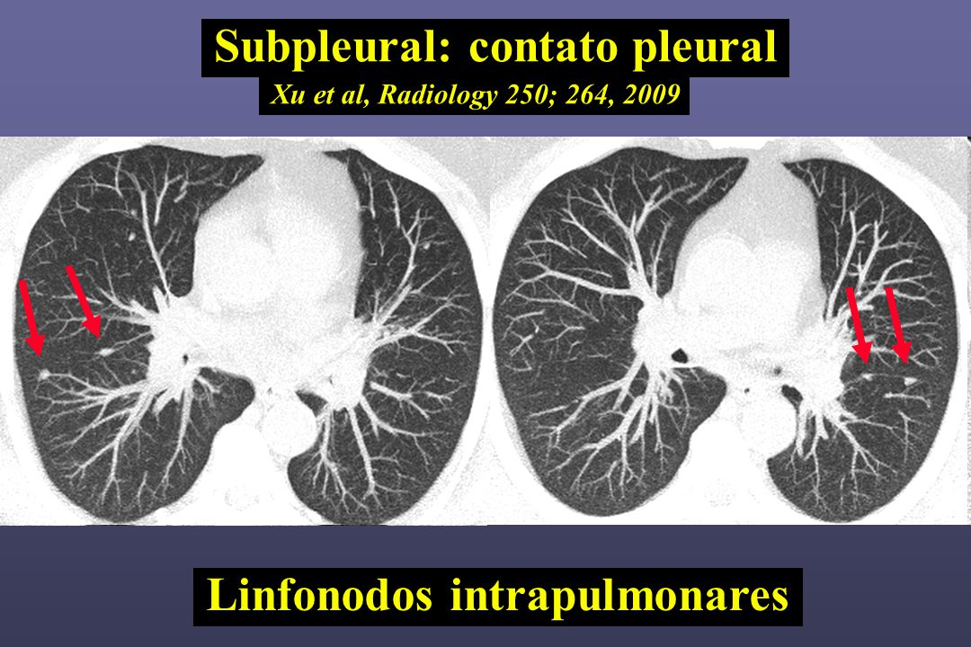 Subpleural: contato pleural Linfonodos intrapulmonares