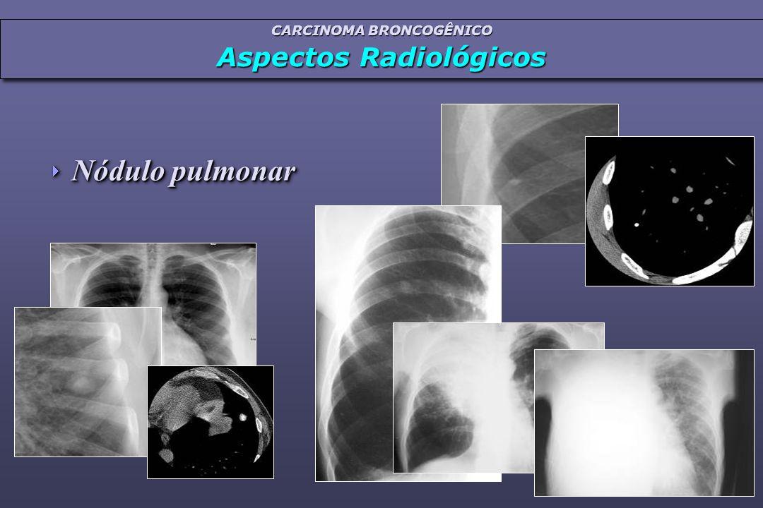 CARCINOMA BRONCOGÊNICO Aspectos Radiológicos