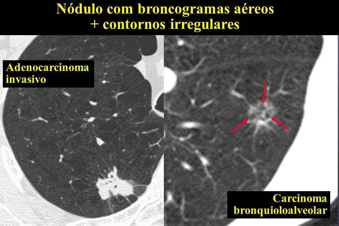 Nódulo com broncogramas aéreos + contornos irregulares