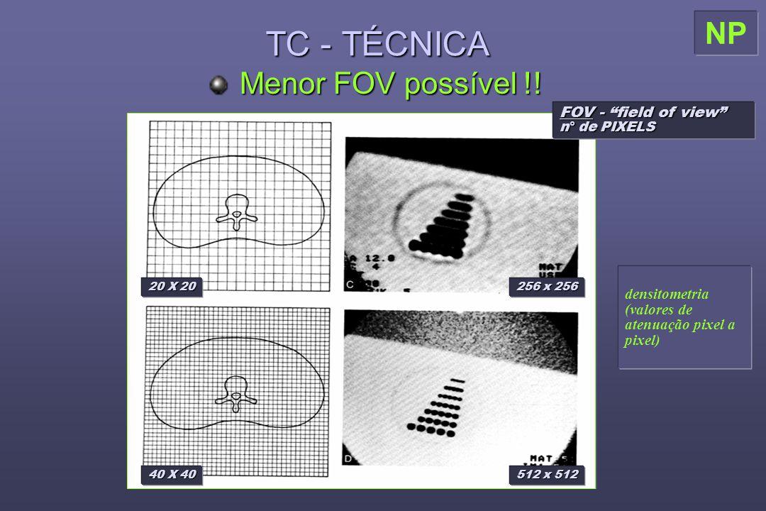 TC - TÉCNICA NP Menor FOV possível !! FOV - field of view