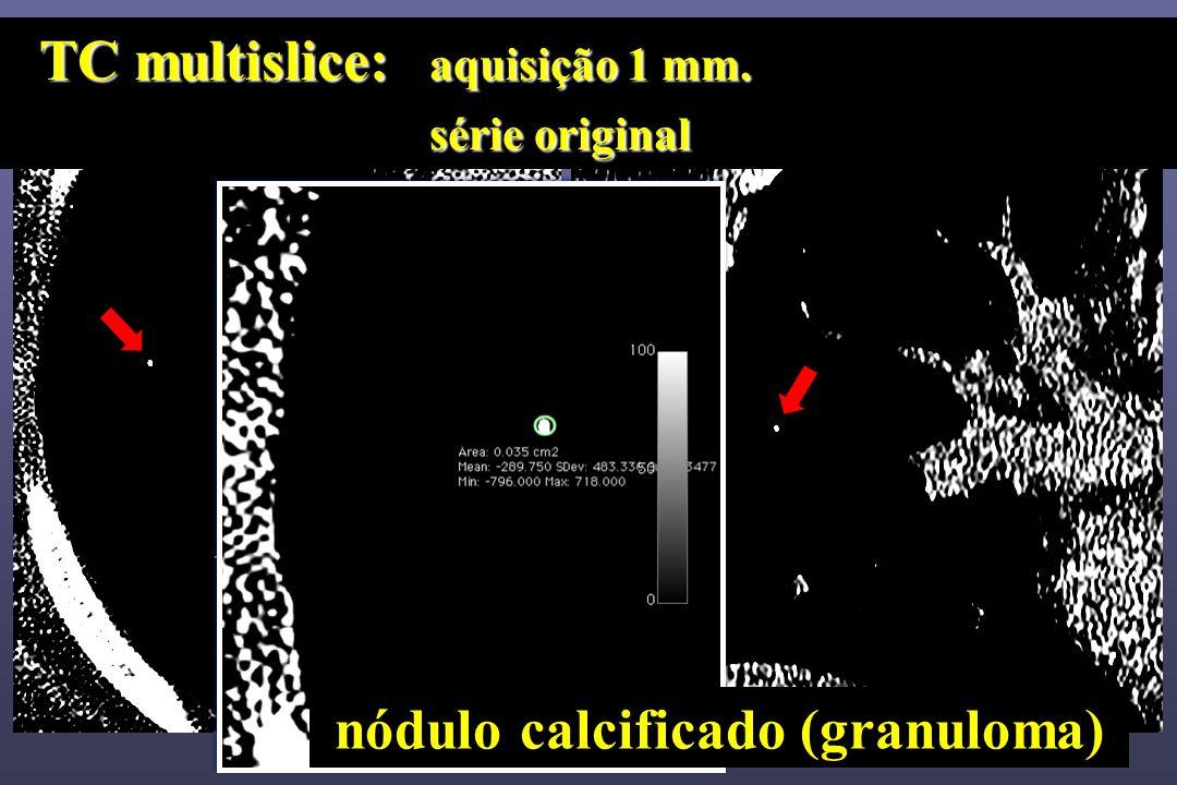 nódulo calcificado (granuloma)