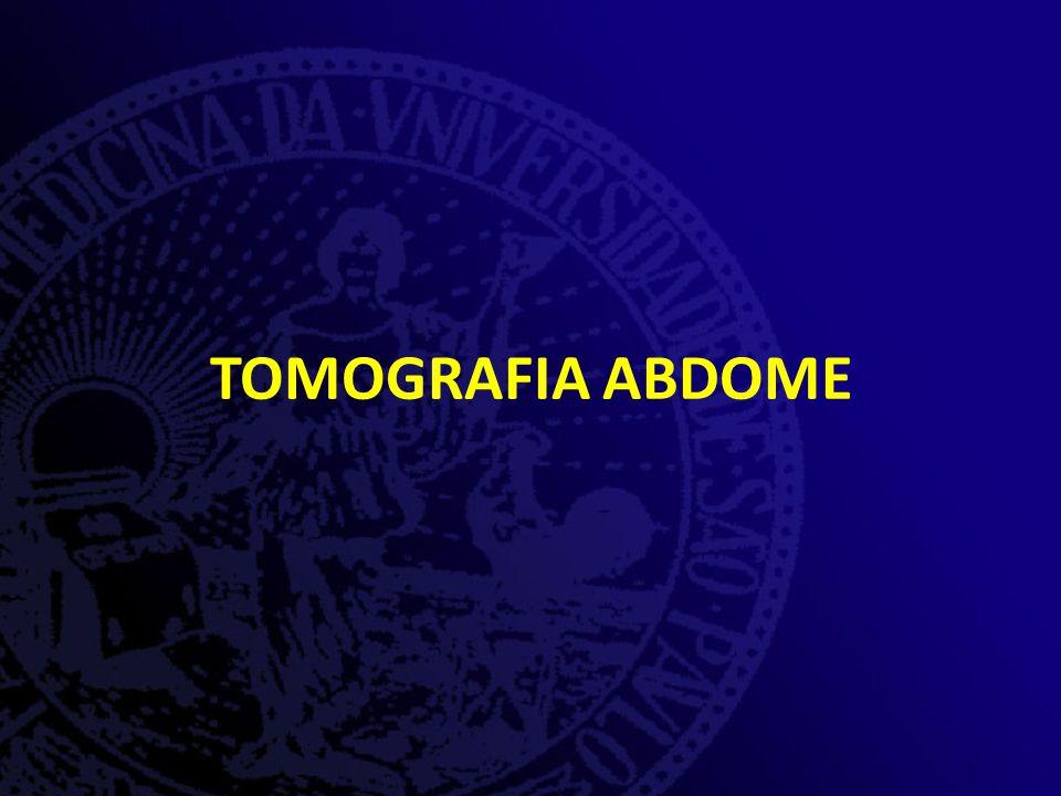 TOMOGRAFIA ABDOME