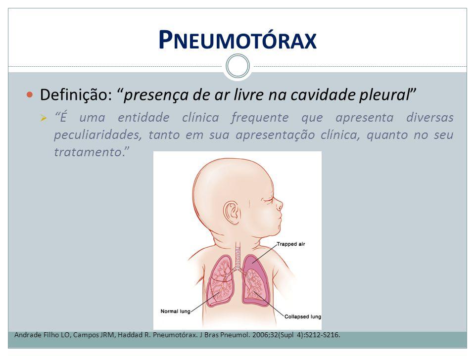 Pneumotórax Definição: presença de ar livre na cavidade pleural