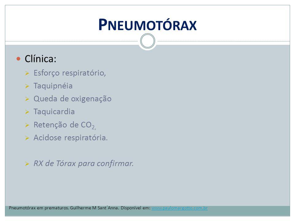 Pneumotórax Clínica: Esforço respiratório, Taquipnéia