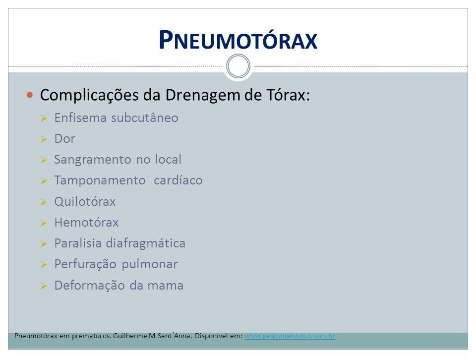 Pneumotórax Complicações da Drenagem de Tórax: Enfisema subcutâneo Dor