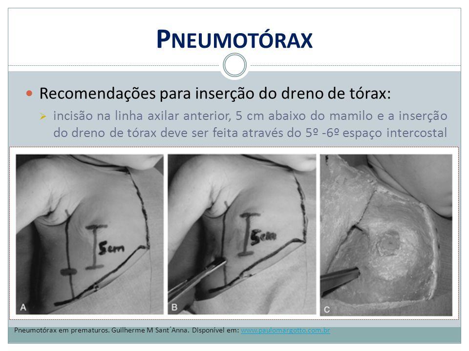 Pneumotórax Recomendações para inserção do dreno de tórax: